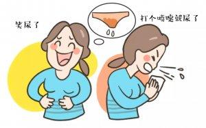 运动配合按摩穴位治疗尿失禁有奇效